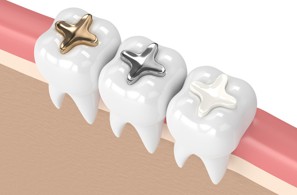 Rendering of teeth with 3 filling materials from Riverwind Dental in Richmond, VA